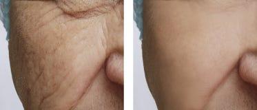 Framsida av tillvägagångssätt för en kirurgi för korrigering för gamal manskrynklor före och efter royaltyfri bild