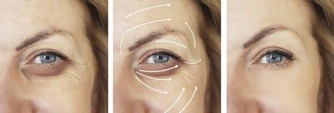 Framsida kvinna, skrynklor, tillvägagångssätt för korrigering för kontrast för effektskillnad tålmodiga före och efter, pil fotografering för bildbyråer