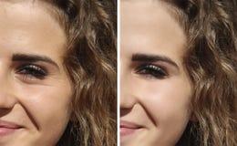 Framsidaflickaskrynklor före och efter fotografering för bildbyråer