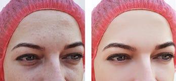 Framsidakvinna, skrynklor av tillvägagångssätt för ögon före och efter arkivbilder