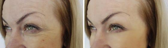 Framsidakvinnan rynkar ögon före och efter royaltyfri bild