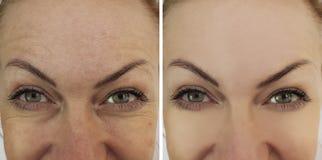 Framsidakvinnan rynkar ögon kontrasterar före och efter royaltyfri bild