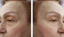 Framsidan av en äldre kvinna rynkar dermatologitillvägagångssätt för och aftetherapy r royaltyfri foto