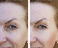 Framsidan av en äldre kvinna rynkar dermatologitillvägagångssätttillvägagångssätt för och aftetherapy r arkivfoton