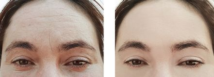 Framsidan av en gammal kvinna rynkar tillvägagångssätt för behandling före och efter arkivfoto