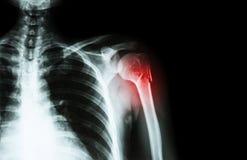 Frattura al collo dell'omero (osso di braccio) (spalla lasciata raggi x del film e area in bianco alla destra) Immagine Stock