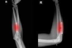 Frattura del polso dei raggi x del film: mostri l'osso del raggio di frattura (avambraccio Immagini Stock