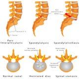 Frattura della spina dorsale. illustrazione vettoriale