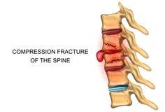 Frattura di compressione della spina dorsale illustrazione vettoriale