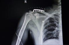 frattura distale della clavicola e tubercolosi polmonare illustrazione vettoriale