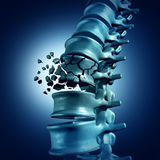 Frattura spinale Immagini Stock Libere da Diritti