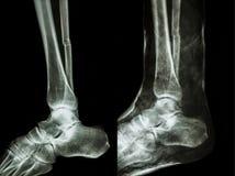 Fratturi l'asse di fibular (l'osso della gamba) con la colata Fotografie Stock Libere da Diritti