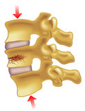 Fratura de compressão vertebral ilustração do vetor
