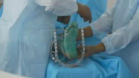 Fratura de osso Equipa médica na sala de operações do hospital que executa a operação vídeos de arquivo