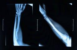 Fratura do braço vista no raio X fotos de stock royalty free