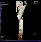 Fratura do fémur, reconstrução moderna da CT-varredura. Fotos de Stock