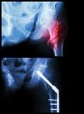 Fratura Intertrochanteric deixada o fêmur (o osso da coxa da fratura) Foi operado e introduziu o prego intramedullary Fotos de Stock Royalty Free