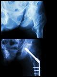 Fratura Intertrochanteric deixada o fêmur (o osso da coxa da fratura) Foram operados e o prego intramedullary da inserção Fotografia de Stock Royalty Free