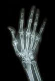 Fratura múltipla no índice, pouco dedo, osso metacarpal Foto de Stock Royalty Free