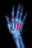 Fratura múltipla no índice, pouco dedo, osso metacarpal Imagem de Stock