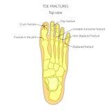 Fraturas do dedo do pé Fotos de Stock