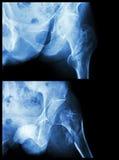 Frature a cabeça do fêmur (osso) (fratura intertrochanteric) (a posição 2) da coxa Foto de Stock Royalty Free
