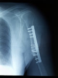 Frature a fixação após a cirurgia de osso de braço quebrado Fotografia de Stock Royalty Free