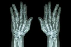 Frature o eixo do phalange proximal do dedo de anel (raio X do filme ambo mão o AP) fotos de stock royalty free