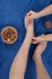 Frau Acupuncturist bereitet vor sich, Nadel zu klopfen Lizenzfreies Stockbild