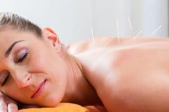 Frau an den Akupunkturnadeln unterstützen herein Lizenzfreies Stockbild