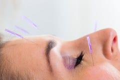 Frau an der Akupunktur mit Nadeln im Gesicht Stockbilder