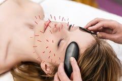 Frau, die Akupunkturbehandlung sich unterzieht Lizenzfreies Stockbild