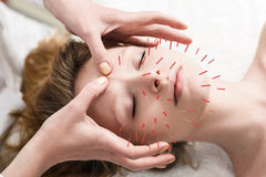 Frau, die Akupunkturbehandlung sich unterzieht Stockbild