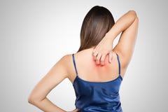 Frau, die ihre juckende Rückseite mit Allergiehautausschlag verkratzt stockfotografie