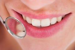 Frau, die ihre zahnmedizinische Überprüfung hat Lizenzfreie Stockfotos