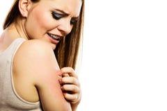 Frau, die ihren Arm verkratzt Stockfoto