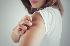 Frau, die ihren Arm verkratzt stockfotografie