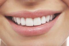Frau, die mit den Präfekt-Weiß-Zähnen lächelt Lizenzfreies Stockfoto