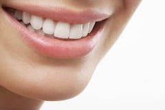 Frau, die mit den Präfekt-Weiß-Zähnen lächelt Stockbild