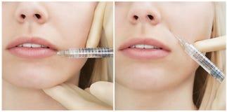 Frau erhält eine Einspritzung in ihrem Gesicht - Collage. lizenzfreie stockbilder