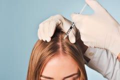 Frau erhält Einspritzung im Kopf Mesotherapy lizenzfreies stockbild