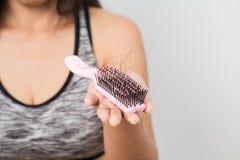 Frau gesorgt um Haarausfall stockfoto