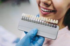 Frau im Zahnarztstuhl, der Zahnimplantate wählt lizenzfreie stockfotografie