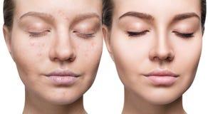 Frau mit Akne vor und nach Behandlung und Make-up lizenzfreie stockfotos