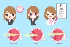 Frau mit Augengesundheitskonzept vektor abbildung