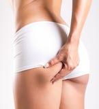 Frau mit dem perfekten Körper, der Cellulite überprüft lizenzfreie stockbilder