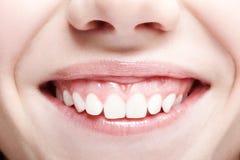 Frau mit den rosa Lippen und den gesunden dentes Mädchen lächelt stockfotografie