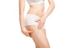 Frau mit Entwürfen für plastische Chirurgie auf Körper Lizenzfreies Stockfoto