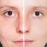 Frau mit pickeliger Haut mit tiefen Poren Lizenzfreie Stockbilder