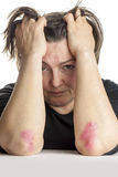 Frau mit Psoriasis Stockbilder